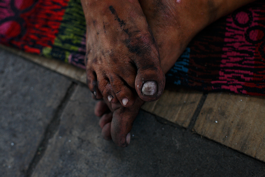 Some of the homeless persons wear sandals, but others walk around barefoot.