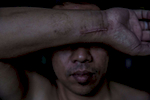 An illegal migrant worker shows a scar from an injury after falling five stories at a construction site.  A local NGO has tried to assist the man with legal proceedings against his employer, who is obligated to cover medical expenses despite the fact that he does not have a work permit. However, many companies subcontract their operations, making legal proceedings exceedingly difficult.