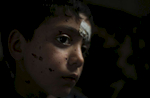 A nine year old Syrian child named Shadi was injured by shrapnel from an unidentified explosion while crossing the border to Lebanon. In the spring of 2012 there were less than 10,000 Syrian refugees registered in the country. By the end of the year that number had surged to more than 170,000.