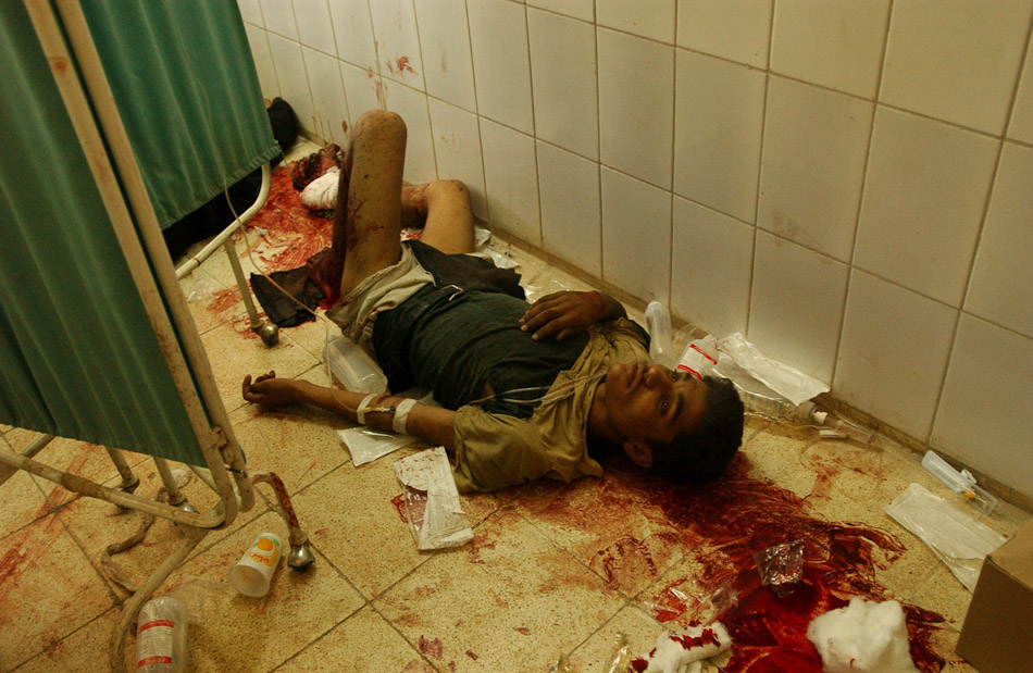 A boy lies on the hospital floor waiting for medical treatment after a car bombing at the Imam Ali Shrine in Najaf.