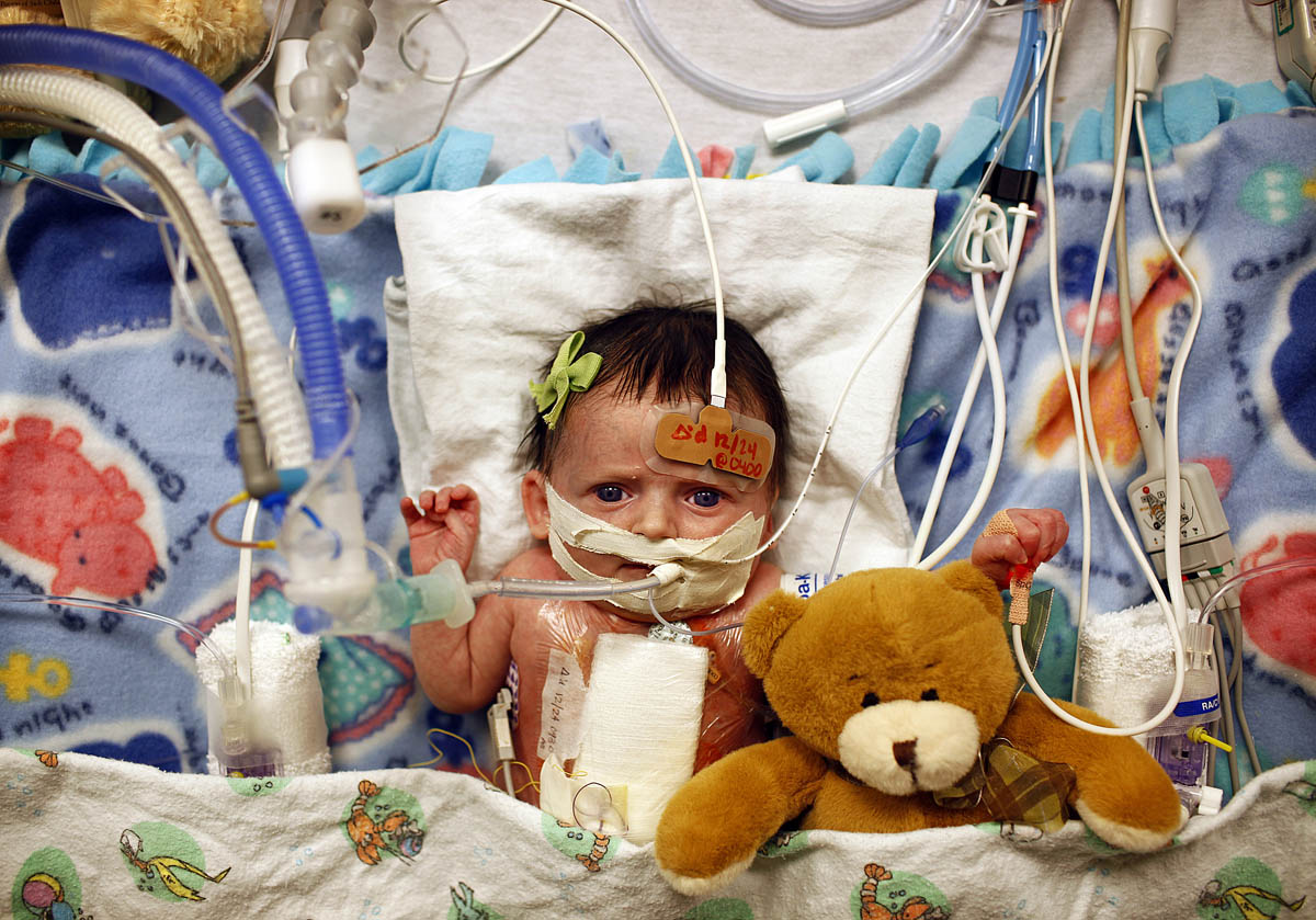 One month-old Loretta Brenzek recovers in her bed after having heart surgery in the Pediatric Intensive Care Unit at Rush University Medical Center on Friday December 24, 2010.