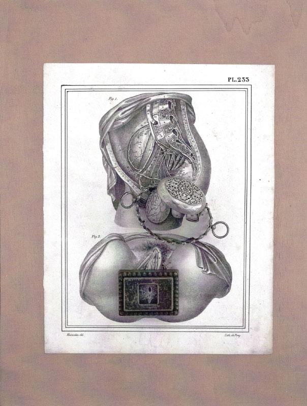 """Daniel SPOERRI (b. 1930)Assemblage auf Originaldruck41 x 31 x 8 cmRückseitig signiert, datiert und mit """"Seggiano"""" bezeichnet."""