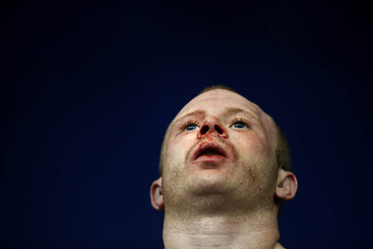 Bleeding from his nose and mouth, Mike Wood stares out into the crowd after his mixed martial arts match. Despite taking numerous punches and kicks to his face and entire body, Wood walked away from his first mixed martial arts match with a win.