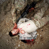 Photographer of the Year: Runner UPAndrew Craft, The Fayetteville ObserverAn 82nd Airborne Division paratrooper plays the part of the wounded during a mass casualty exercise April 25, 2014, at Camp Mike Spann in Mazar-e-Shariff, Afghanistan.