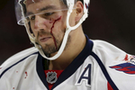 Sports POY: Runner UpEamon Queeney, North State Journal Washington Capitals defenseman Matt Niskanen (2) leaves the game with a bloodied face after fighting Carolina Hurricanes left wing Phillip DiGiuseppe (34) in the third period of the NHL preseason game at PNC Arena in Raleigh, Friday, October 7, 2016. The Carolina Hurricanes defeated Washington Capitals 3 - 2 in a shootout.