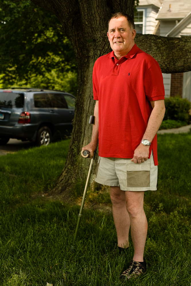 William B. Stewart, Ph.D., associate professor and chief of the Section of Anatomy and Experimental Surgery at Yale University stands in his front yard during his recovery from spinal surgery.Yale Medicine Magazine.
