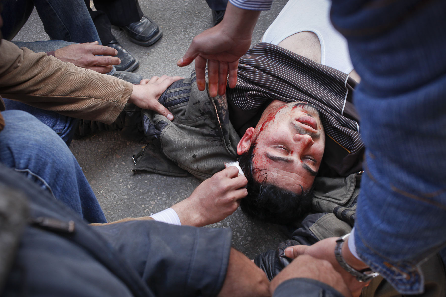 An anti-government demonstrator injured during a clash with President Mubarak's supporters on Tahrir Square on Wednesday February 2 2011