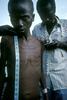 Rwandan Hutu orphan in the refugee camp of Kibumba in August 1994