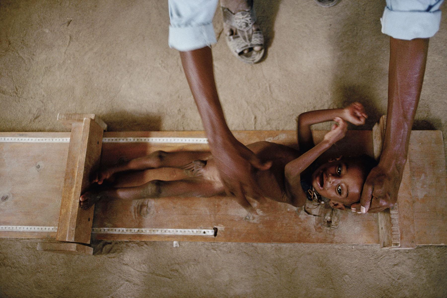 Hospital in Somali refugee camp in July 1992