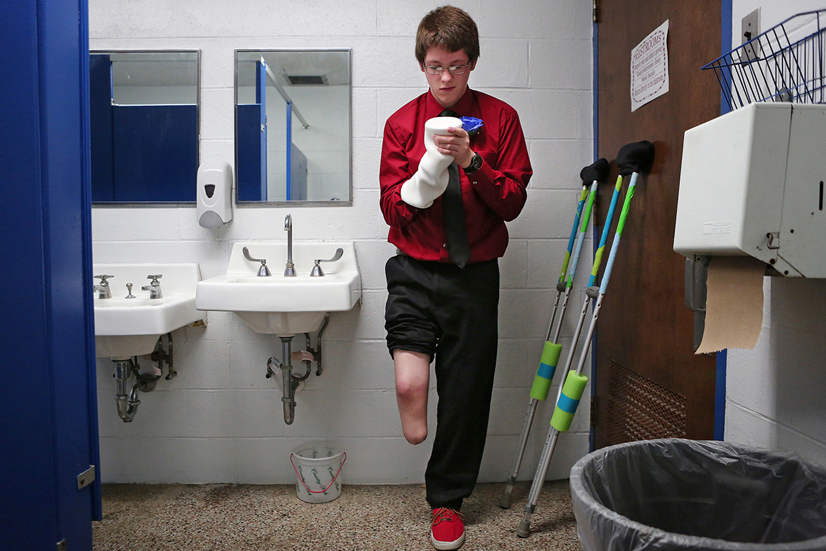 Seth Melvin, 15, who was born with a deformed leg and foot which he decided to have amputated, adjusts his prosthetic liner before his eighth grade graduation at Cornell Grade School in Cornell, Ill. Melvin accomplished one of his goals, to walk with a prosthetic to accept his diploma at graduation.