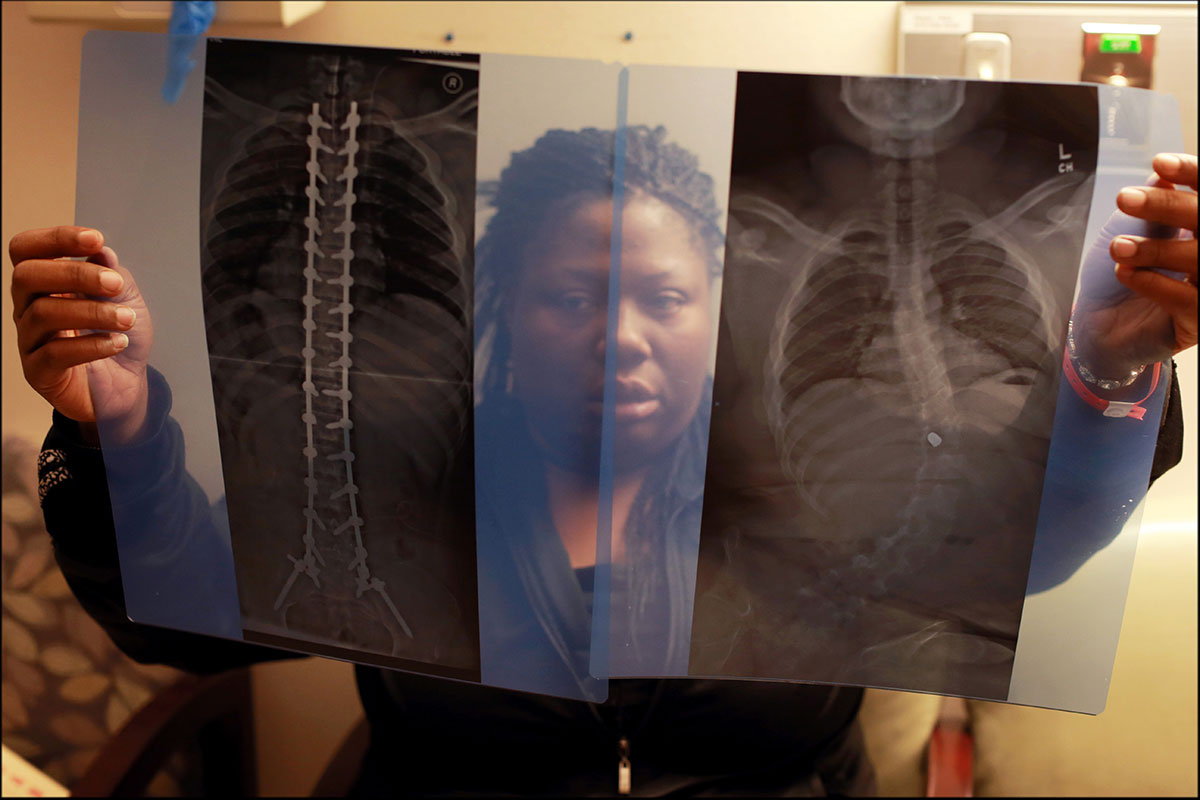 Lawanda Booker compares before and after X-ray photos of her son's spinal fusion surgery at Shriners Hospitals for Children. Her son, Edward, 16, who was shot five times by another 16-year-old, barely escaped alive, was paralyzed from the waist down as a result of the shooting. A bullet in Edward's spine, right X-Ray, is also removed during the surgery.