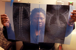 Lawanda Booker compares before (right) and after X-ray photos of Edward's spinal fusion surgery at Shriners Hospitals for Children in Philadelphia. A bullet on Edward's spine was also removed during the surgery. The hospital provided the surgery and other medical needs to Edward without a financial obligation.