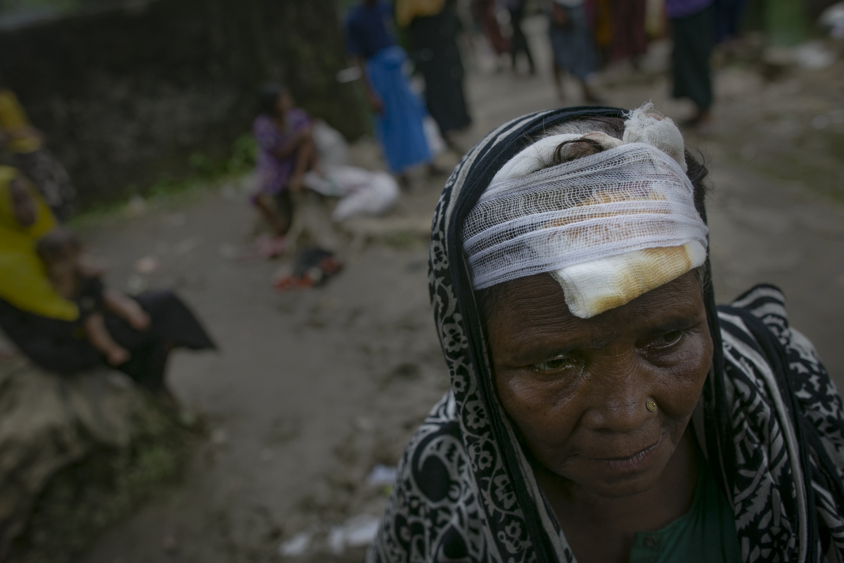 A woman who says that Myanmar military hit her head with a machete is seen in an informal settlement