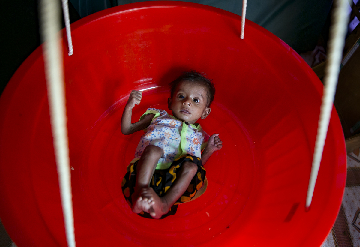 7 month old, 2.7kg Asufa, a Rohingya refugee, is weighed at an Action contre la Faim feeding center in Balukhali camp