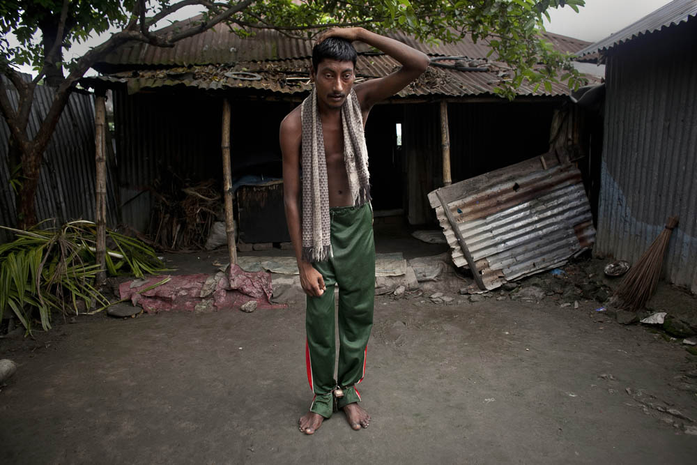 Mentally ill 22 year old Rofikul walks outside his home while his legs are chained August 26, 2014 in Pabna, Bangladesh. Rofikul is unable to speak and often gets violent, but doctors at Pabna Mental Hospital certified him mentally fit and discharged him. His family occasionally chains him because he runs away into town and becomes violent with people, and they feel that  they have no other options. Mental health in Bangladesh is largely neglected and under financed, and the stigma of mental health is huge. In rural areas there are few doctors and families generally take the patient to a traditional healer first, who usually tries to exorcize the Jinn (spirits) with holy water and versus from the Koran. Families who have a mentally ill family member sometimes tie them up out of desperation and lack of education and options. There is only one government run mental hospital with 500 beds in the entire country. Less than 0.5% of government health budget is spent for mental health. Allison Joyce/Redux