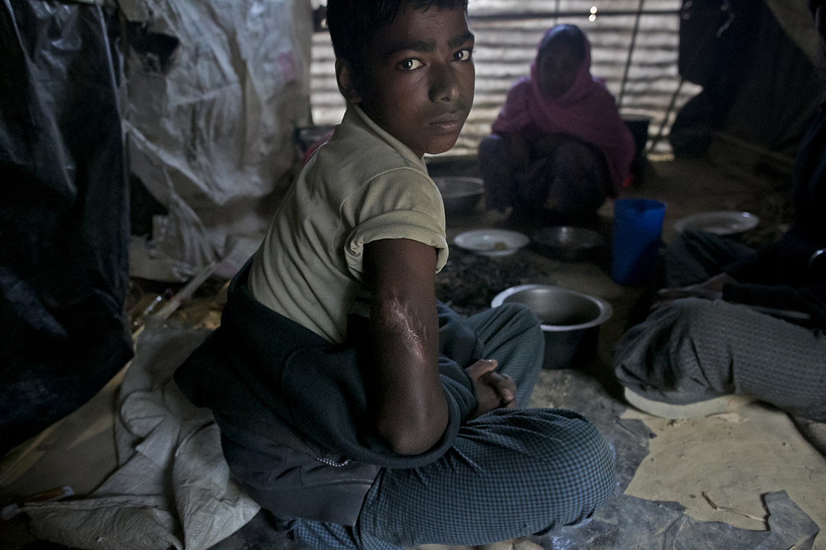 12 year old Mohammad Inus, who was shot by the Myanmar military, poses for a photo in his home in Kutapalong unregistered camp in 2017 in Coxs Bazar, Bangladesh.