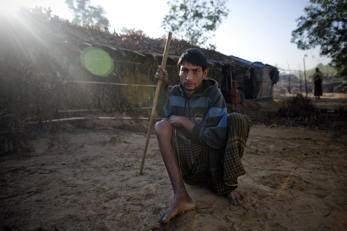 Mohammad Muslim, who recently fled violence from Morichabil village in Myanmar, poses for a photo in the Balu Kali Rohingya refugee camp in 2017 in Coxs Bazar, Bangladesh. He was shot by the military in Myanmar after he tried to rescue women from being raped by soldiers. He had treatment and surgery on his wounded leg from MSF in Bangladesh.