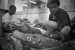 A young boy with an extreme case of hydrocephalus lies in the children's ward of the Port Moresby General Hospital. Hydrocephalus occurs as a result of extra cerebrospinal fluid that builds up in the brain. In some instances of early intervention it can be managed however, there isn't believed to be a cure.