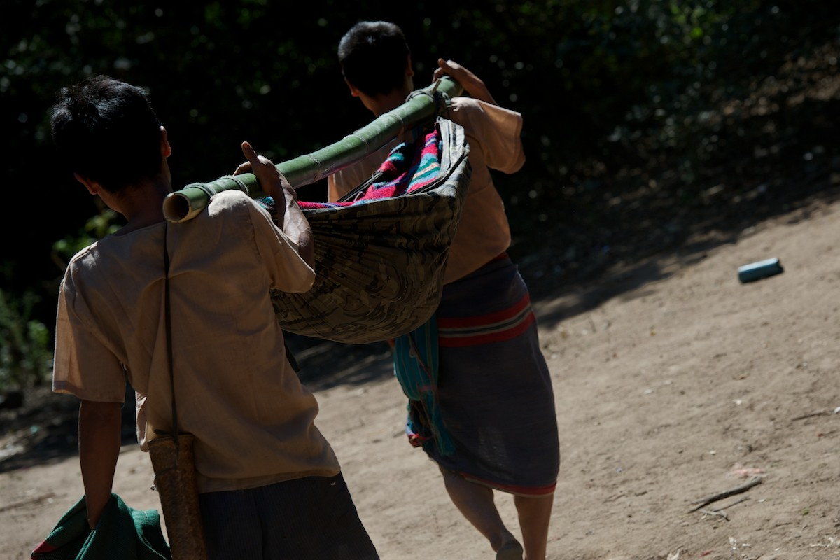 Villagers use a bamboo hammock stretcher to carry a young girl who has a severe case of staff infection to the JSMK clinic two hours away. This patient was diagnosed with a severe case of staff infection in her left shoulder and left hip, a life threatening infection that was succesfully operated on.
