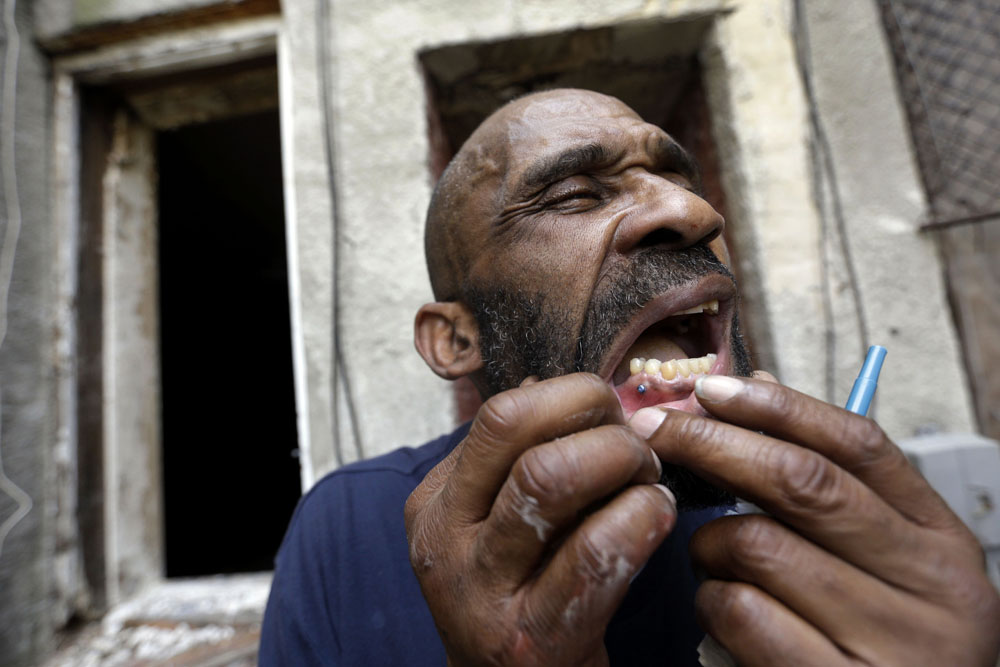 A homeless man who gave his name as Angelo displays a pin that holds his jaw together that he said he received after being beaten and robbed while sleeping in a vacant row house, seen behind him, in Baltimore.