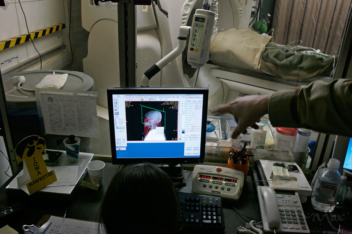 CT scan technician, Staff Sergeant Kelly Dewey, looks at the brain scan of Marlon Salcepalma through a CT scanner looking for internal bleeding after he received an RPG blast to the body at Balad Air Base, on October 30, 2005. Such modern technology so far forward on the battlefield is what helps keep the number of patients who die once they reach the hospital down to 4.2%, according to Colonel Elisha Powell.
