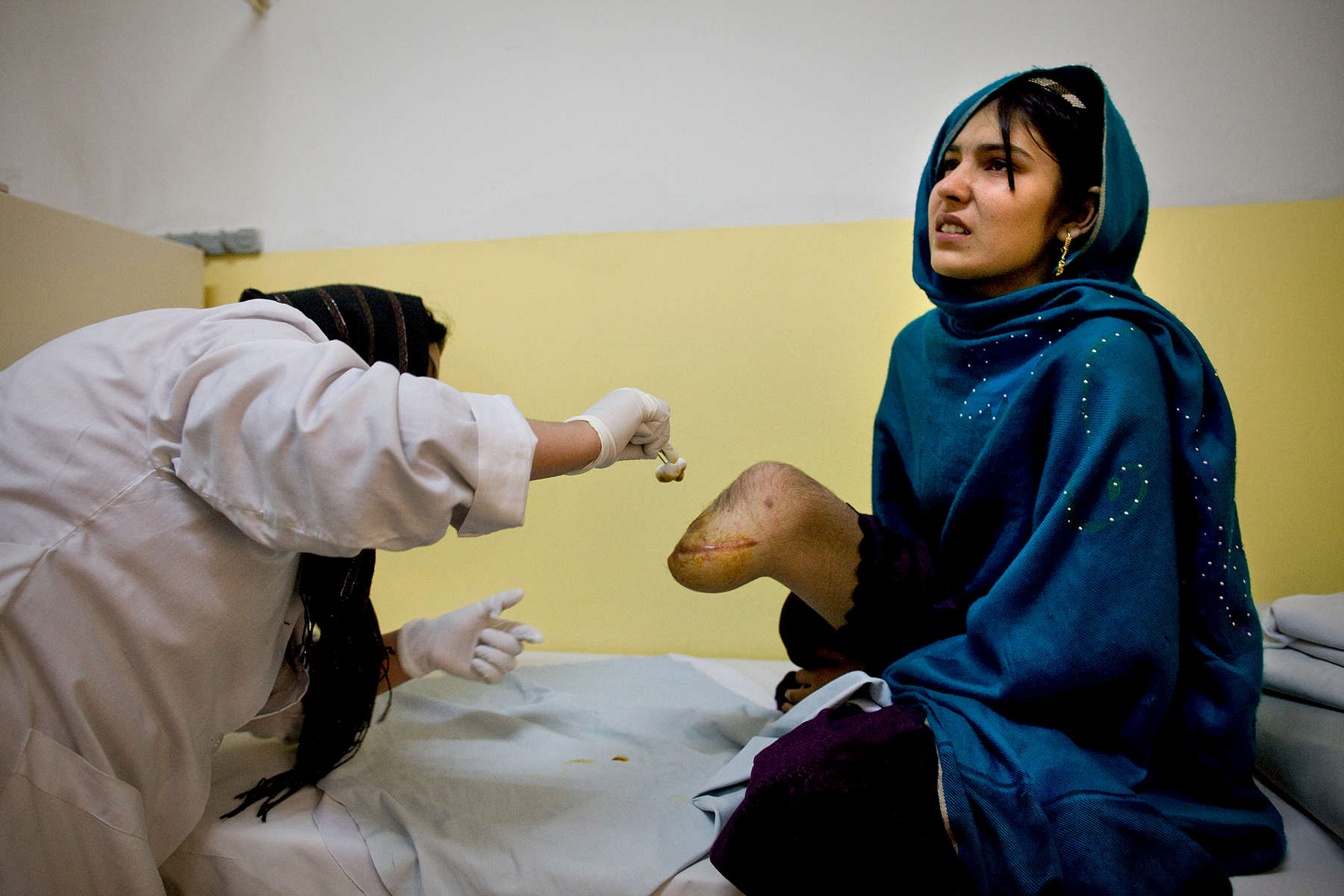 Bibi Adela, age15, from Khost gets her wound treated on her amputated leg at the International Red Cross Orthopedic (ICRC) rehabilitation center November 23, 2009 Kabul, Afghanistan. Bibi Adela lost her leg below the knee from a rocket attack 5 months ago that killed her sister and brother, injuring her mother as well. A recent U.N. report has described 2009 as the deadliest year in terms of civilian casualties in Afghanistan  since the start of the U.S.-led war against Taliban in the country.