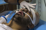 GAZA STRIP- MAY 21,2018: Wesam Hijazi, 32, is seen in critical condition at the European Gaza hospital Intensive care unit on May 21,2018 in Gaza strip. He has been in a coma for a week after being shot in the head with an exploding bullet at the protests on May 14th. Wesam's younger brother, Yousef, was also injured in his abdomen, his older brother killed in an Israeli bombing in 2010. Wesam is married and a father of one-year old child. Everyone is well aware that Gaza's two million inhabitants are trapped in a cycle of violence and poverty, created by policies and political decisions on both sides. The problems and complications affecting Gaza today are overwhelming. The world, seemingly accustomed to the suffering of the Gazan people turns a blind eye. (Photo by Paula Bronstein )