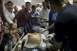 GAZA CITY, GAZA STRIP- MAY 14,2018:  A seriously injured male is seen being taken in for surgery at the emergency room at the Al Shifa hospital on May 14,2018 in Gaza city, Gaza strip. According to the International Committee of the Red Cross (ICRC), 13,000 Palestinians were wounded (as of June 19, 2018), the majority severely, with some 1,400 struck by three to five bullets. No Israelis were physically harmed during this time period, Israel's use of deadly force was condemned during the UN general assembly on June 13 th along with other human rights organizations. The Israeli military (IDF) started using new weaponry, explosive bullets that shatter bones, tissue, destroying veins and arteries, the aim is to create a handicapped community, especially amongst the young male population. Many of the wounded protesters have to undergo multiple surgeries to try to save their limbs, and in some cases amputation is the only solution. With limited healthcare available in Gaza many were sent to Jordan and Turkey for further treatment. More issues that plague Gaza include a water supply that is 95 percent contaminated and a population forced to live without electricity for 21 hours a day. Gaza is compared to Venezuela with almost half of it's labor force unemployed. Everyone is well aware that Gaza's two million inhabitants are trapped in a cycle of violence and poverty, living in an open air prison. The problems and complications affecting Gaza today are overwhelming. The world, seemingly accustomed to the suffering of the Gazan people turns a blind eye. (Photo by Paula Bronstein )