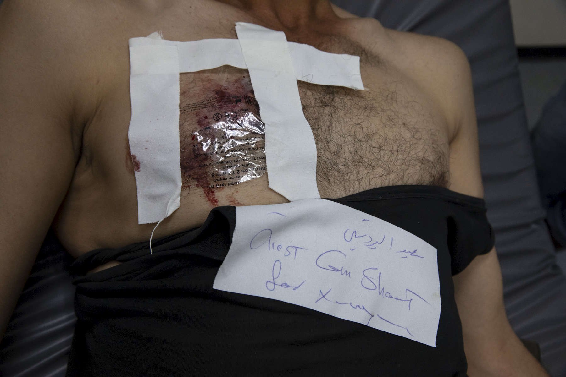 GAZA CITY, GAZA STRIP- MAY 26, 2018:  A man with a gunshot wound in his chest is seen in                                                                                                                                                                                    the emergency room at the Al Shifa hospital on May 26 ,2018 in Gaza city, Gaza strip. According to the International Committee of the Red Cross (ICRC), 13,000 Palestinians were wounded (as of June 19, 2018), the majority severely, with some 1,400 struck by three to five bullets. No Israelis were physically harmed during this time period, Israel's use of deadly force was condemned during the UN general assembly on June 13 th along with other human rights organizations. The Israeli military (IDF) started using new weaponry, explosive bullets that shatter bones, tissue, destroying veins and arteries, the aim is to create a handicapped community, especially amongst the young male population. Many of the wounded protesters have to undergo multiple surgeries to try to save their limbs, and in some cases amputation is the only solution. With limited healthcare available in Gaza many were sent to Jordan and Turkey for further treatment. More issues that plague Gaza include a water supply that is 95 percent contaminated and a population forced to live without electricity for 21 hours a day. Gaza is compared to Venezuela with almost half of it's labor force unemployed. Everyone is well aware that Gaza's two million inhabitants are trapped in a cycle of violence and poverty, living in an open air prison. The problems and complications affecting Gaza today are overwhelming. The world, seemingly accustomed to the suffering of the Gazan people turns a blind eye. (Photo by Paula Bronstein )