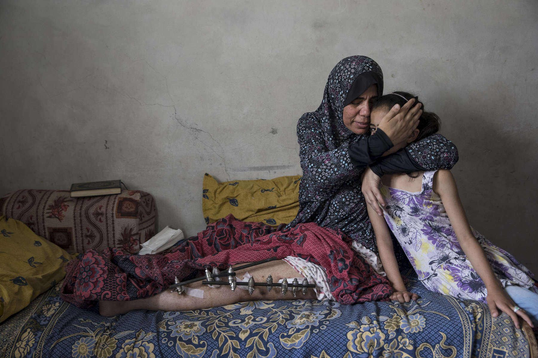GAZA STRIP- MAY 22,2018 : Kefah Al-Ajrami, 47, holds her daughter Zamzam Al-Ajrami, 9 years  who was crying after seeing her mother in pain on May 22,2018 in Gaza city, Gaza strip. Kefah is a mother of seven, she was shot in her left leg with an exploding bullet causing extensive injury to her leg. She went to the protests on March 30th  along with her children and husband but was nowhere near fence. The Israeli military (IDF) started using new weaponry, explosive bullets that shatter bones, tissue, destroying veins and arteries, the aim is to create a handicapped community, especially amongst the young male population.  Everyone is well aware that Gaza's two million inhabitants are trapped in a cycle of violence and poverty, created by policies and political decisions on both sides. The problems and complications affecting Gaza today are overwhelming. The world, seemingly accustomed to the suffering of the Gazan people turns a blind eye. (Photo by Paula Bronstein )