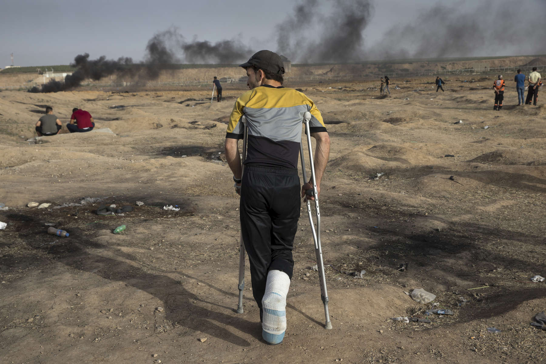 GAZA CITY, GAZA STRIP- MAY 25,2018: An injured protester is seen at the site near the Israel-Gaza border  on May 25,2018 in Gaza city, Gaza strip. At least 110 Palestinians were killed between March 30-May 15th. According to the International Committee of the Red Cross (ICRC), 13,000 Palestinians were wounded (as of June 19, 2018), the majority severely, with some 1,400 struck by three to five bullets. No Israelis were physically harmed during this time period, Israel's use of deadly force was condemned during the UN general assembly on June 13 th along with other human rights organizations. Everyone is well aware that Gaza's two million inhabitants are trapped in a cycle of violence and poverty, created by policies and political decisions on both sides. The problems and complications affecting Gaza today are overwhelming. The world, seemingly accustomed to the suffering of the Gazan people turns a blind eye. (Photo by Paula Bronstein )