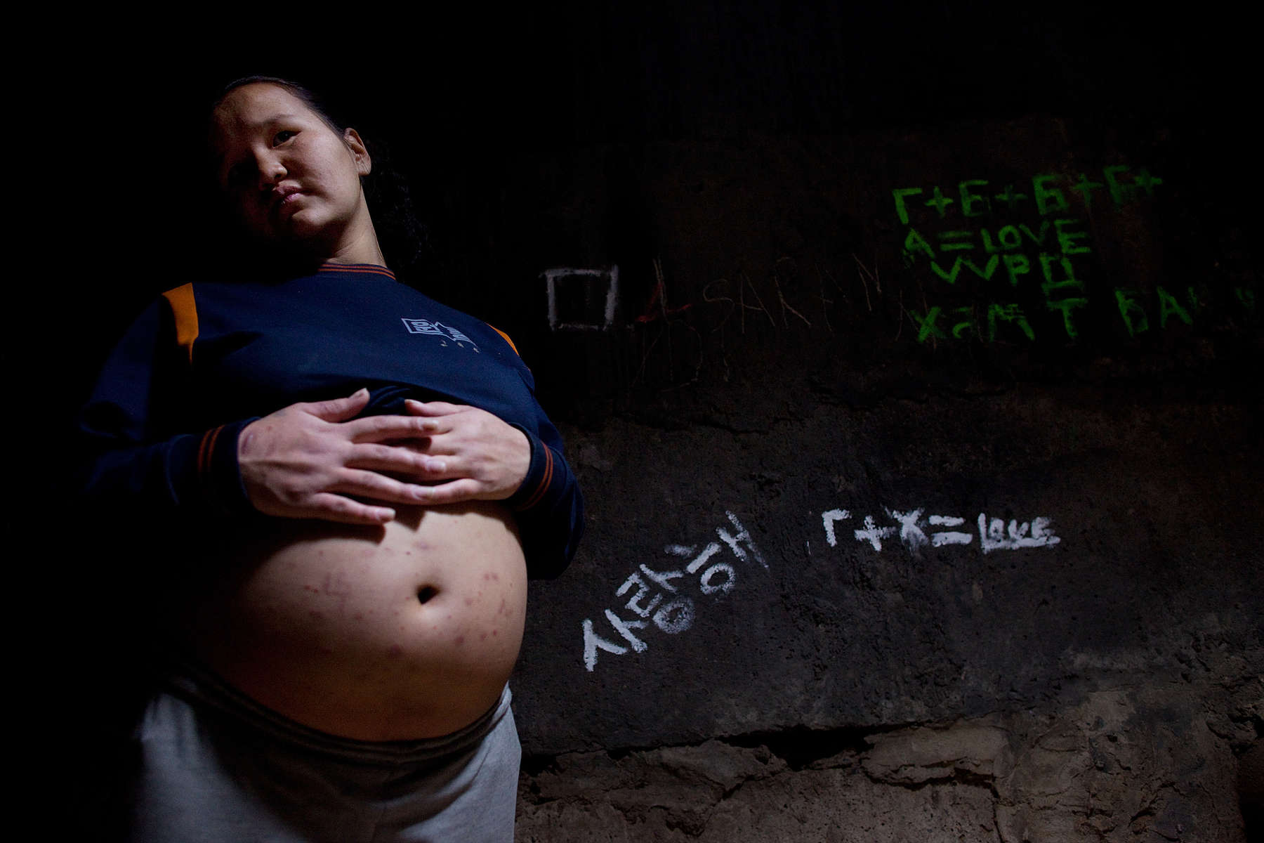 ULAAN BAATAR, MONGOLIA-MARCH 16 :  Zolzaya, 18, is 7 months pregnant, her huge belly is covered with what she says is an allergy,  insect bites from living amongst the bacteria in the sewer  March 16, 2010  in Ulaan Baatar, Mongolia. Since 70 years of communist rule ended in 1990, Mongolia has become one of the most pro-business countries. While economic reforms have brought prosperity to Ulaan Baatar, there still widespread unemployment, some used to work in the now defunct state industries. Approximately over 35% of Mongolians live below the poverty line, many unable to buy basic food needed to survive. Social problems include depression, alcohol abuse, domestic violence and crime. Mongolia suffers with a very high number of alcoholics, all consuming cheap Mongolian vodka that is readily available to the poor and the unemployed, Many Mongolians have immigrated to the capitol city from the far away provinces seeking employment.  For the homeless during the winter this means extreme hardship, for some homeless living in the sewers means warmth verses dealing with temperatures dropping as low as -25C mid- Winter. This year Mongolia has experienced the worst winter in 30 years. (Photo by Paula Bronstein /Getty Images)