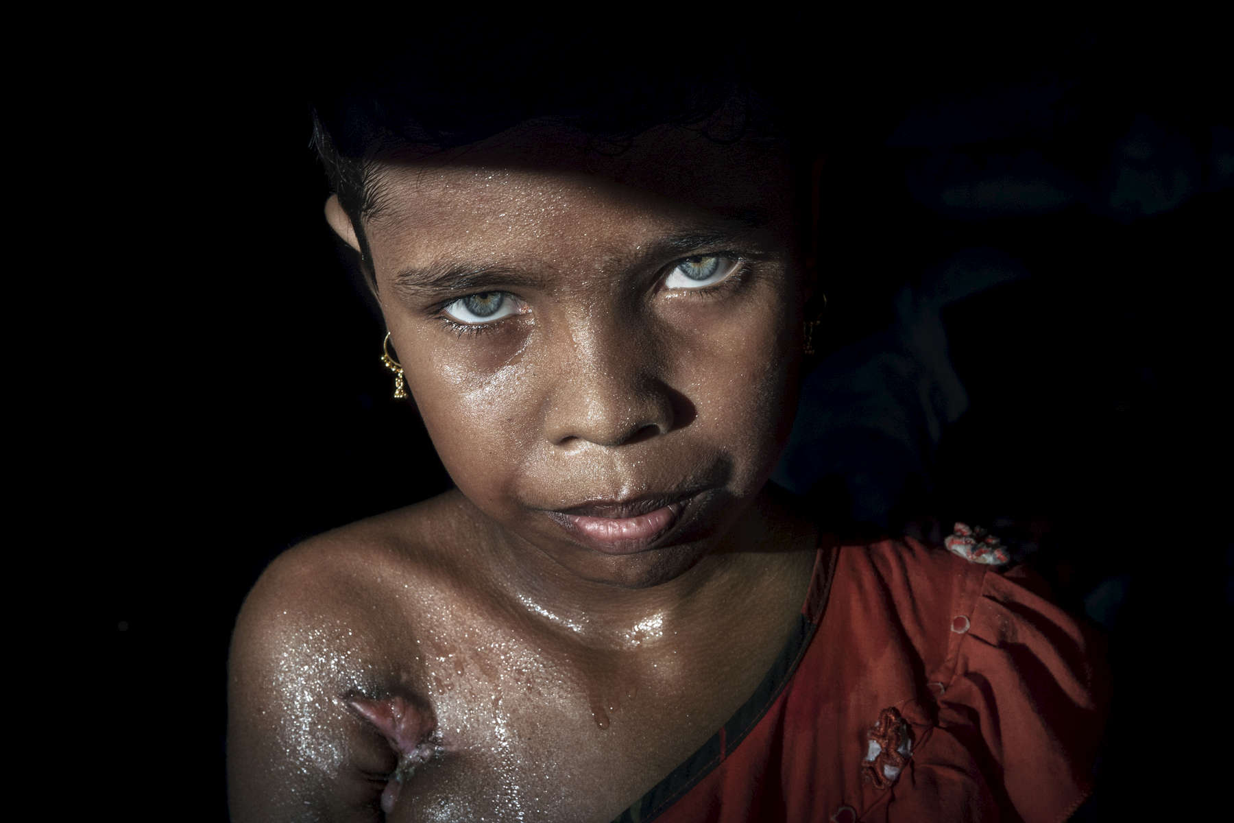 "Oct. 10: Azida Begum, age 11, was shot twice under her arm and her leg by Burmese military, killing her mother as she was fleeing her small village in Myanmar. Azida now lives with her grandmother, her father died years back.For years Buddhist majority Myanmar has struggled to deal with a deeply rooted hatred towards the Rohingya in western Rakhine state. The Muslim ethnic minority were always considered illegal immigrants from Bangladesh and denied the rights of citizenship. According to Human Rights Watch, the 1982 laws {quote}effectively deny to the Rohingya the possibility of acquiring a nationality "". Myanmar's government also enforced severe restrictions on freedom of movement, state education and civil service jobs and health care. The refugee emergency unfolded in late August after an attack on state security forces by Rohingya insurgents, triggering a brutal military crackdown that has forced more than half of the country's 1.1 million population fleeing to neighboring Bangladesh creating the fastest cross-border exodus ever witnessed with over 655,000 new arrivals."