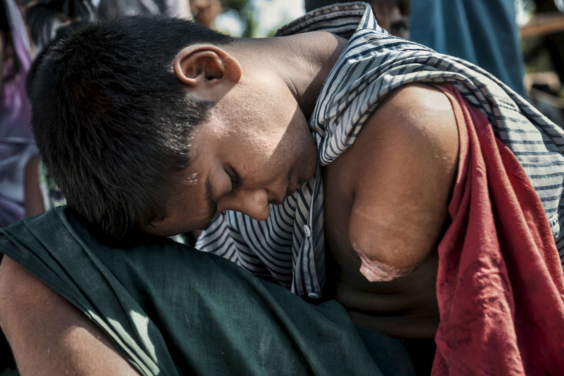 Orphan Mohammad Faisal , age 13, is exhausted after arriving in Bangladesh the night before, rests while he and his siblings wait for transport from the registration center. His story: He fled his village, Gudam Para two months ago when Burmese military attacked and set fire to their home. He was shot in the arm and lost his family during the escape. He was running away alone when he was shot, later the wound became infected and his arm was amputated by his uncle in order to save his life.