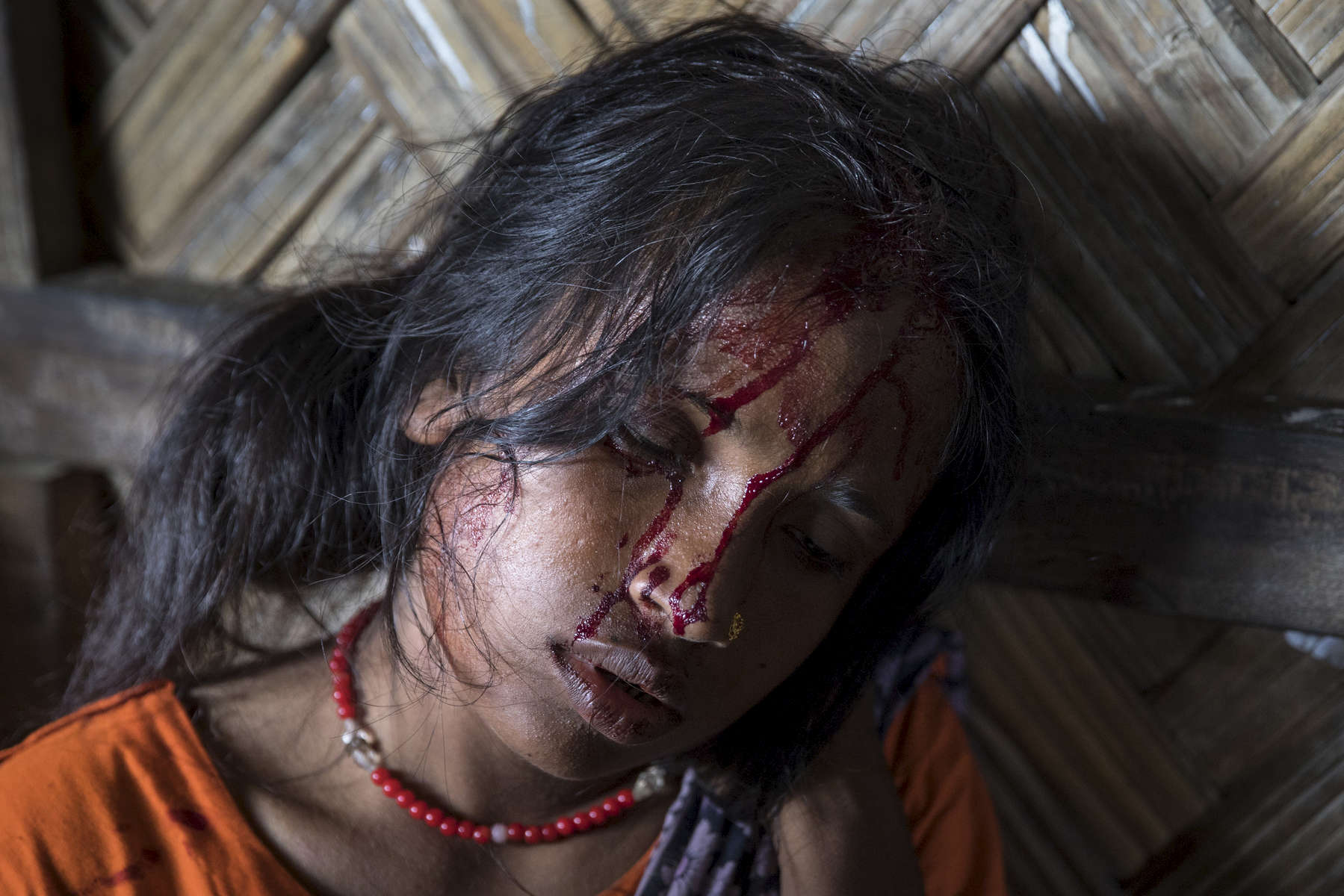 KUTUPALONG, BANGLADESH - OCTOBER 4: Aneta Begum,25,waits for treatment for a head injury after being attacked in the emergency unit at the Kutupalong MSF clinic on October 4, Kutupalong, Cox's Bazar, Bangladesh. Doctors Without Borders/Médecins Sans Frontières (MSF) has been providing comprehensive basic healthcare services at their Kutupalong clinic since 2009. Due to the current Rohingya crisis the clinic has expanded it's inpatient capacity dealing with approximately 2,500 out patient treatments and around 1,000 emergency room per week.   All healthcare services provided at the clinic are free of charge to both the Rohingya refugee population as well as local Bangladeshi patients. MSF has also set up a number of health posts, mobile clinics and water and sanitation services elsewhere in Cox'Äôs Bazar to better respond to the influx. Well over a half a million Rohingya refugees have fled into Bangladesh since late August during the outbreak of violence in Rakhine state causing a humanitarian crisis in the region with continued challenges for aid agencies. (Photo by Paula Bronstein/Getty Images)