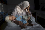 KABUL, AFGHANISTAN -MARCH 29, 2016:  At the Emergency hospital Najiba holds her nephew Shabir, age 2,  who was injured from a bomb blast which killed his sister in Kabul on March 29, 2016. Najiba had to stay with the children as their mother buried her daughter. Afghan civilians are at greater risk today than at any time since Taliban rule. According to UN statistics, in the first half of 2016 at least 1,600 people had died, and more than 3,500 people were injured, a 4 per cent increase in overall civilian causalities compared to the same period last year. The upsurge in violence has had devastating consequences for civilians, with suicide bombings and targeted attacks by the Taliban and other insurgents causing 70 percent of all civilian casualties.