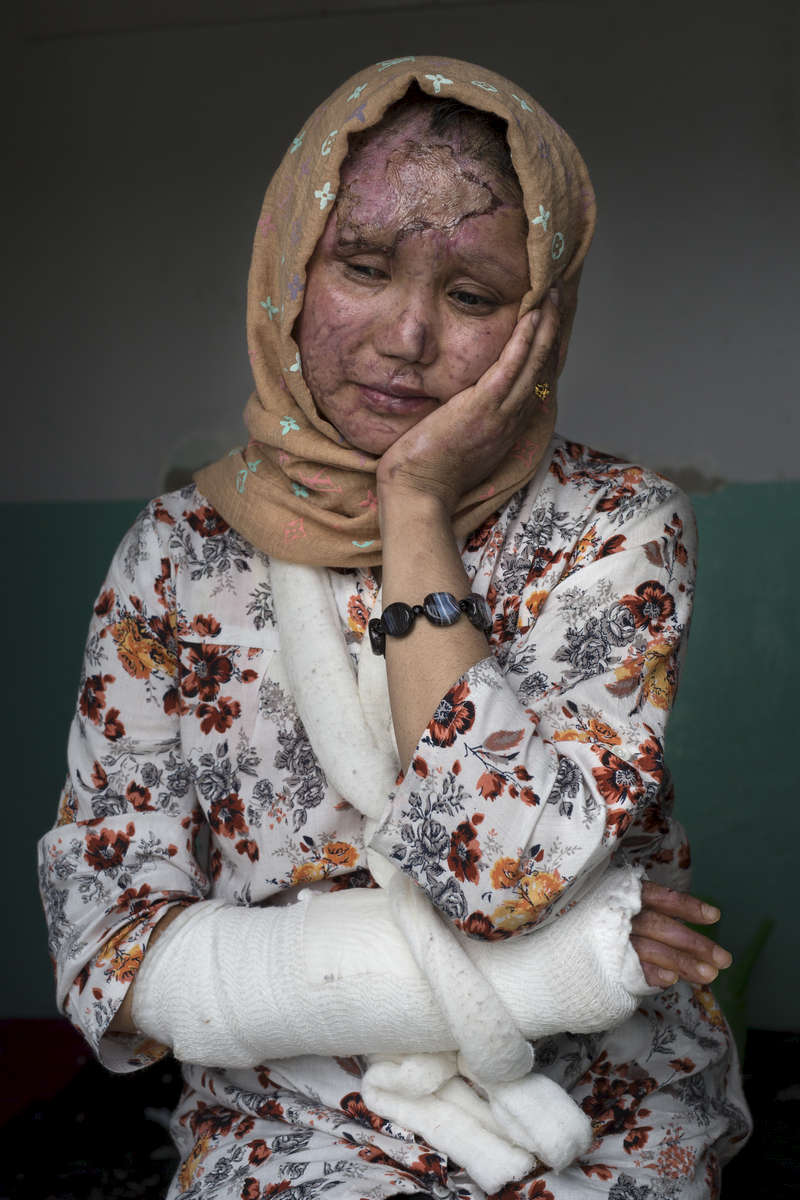 KABUL, AFGHANISTAN -APRIL 9, 2016:  Razia Noorizada Didar ,30, was one of the seriously wounded victims that worked with Tolo for a decade. Razia has a lost sight in her left eye, and has several fractured bones, her face is scarred from burns and shrapnel. She says her life is shattered and she wants to leave Afghanistan. The employees had finished a day's work at Tolo TV, one of Afghanistan's largest entertainment channels, when they boarded a company bus in Kabul that was rammed by a car driven by a Taliban suicide bomber. Seven people were killed and at least 25 wounded in the attack.Every year the UN comes out with their report documenting the unfortunate carnage from America's longest and most costly war in history. Along with the price tag estimated in the hundreds of billions, the human toll from a 2015 UN Assistance Mission To Afghanistan (UNAMA) report stated the number of Afghan civilians killed and wounded surpassed 11,000.  which was the deadliest on record for civilians in Afghanistan since the US-led invasion more than 14 years ago.