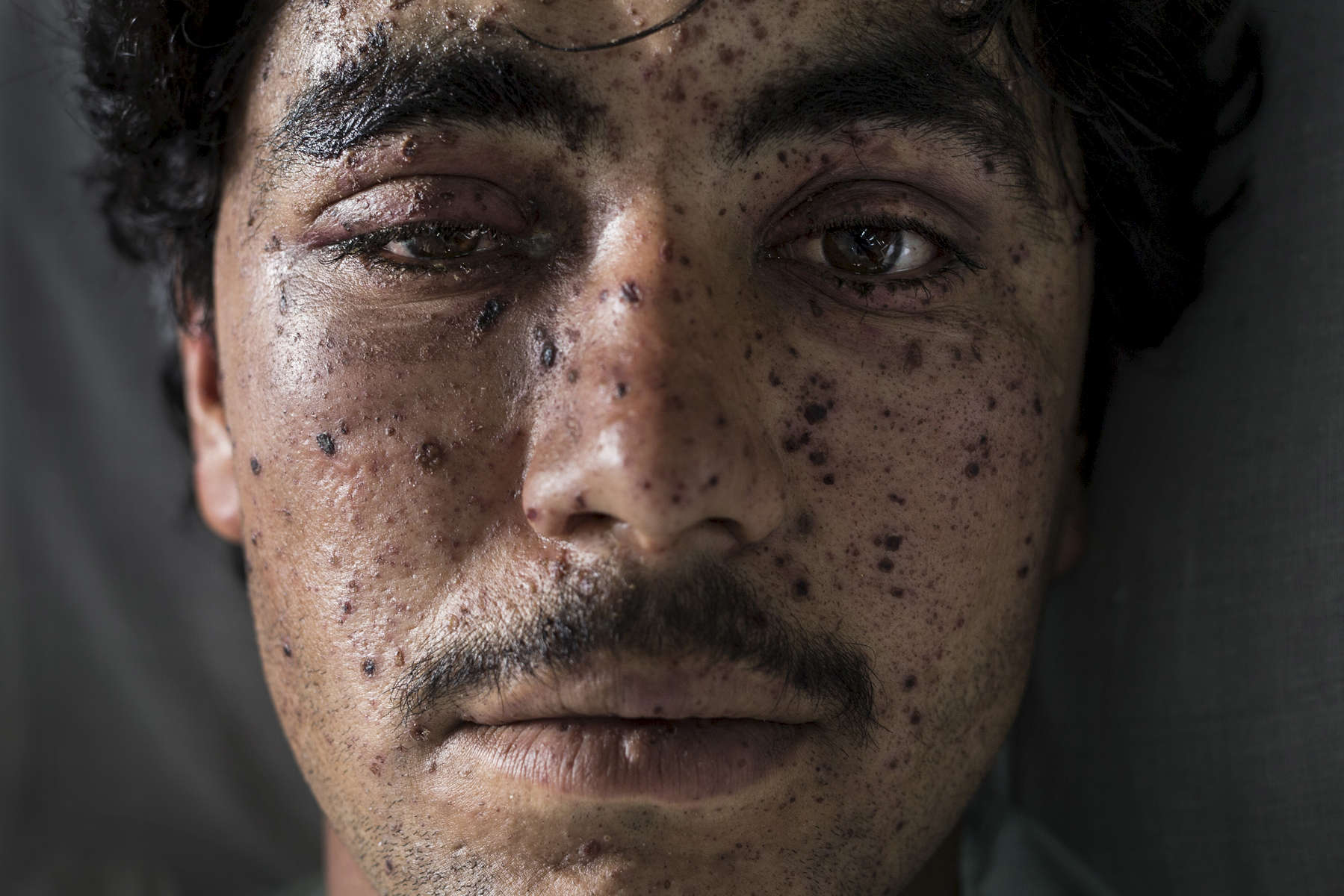 LASHKAR GAH, AFGHANISTAN -MARCH 26, 2015: Kharim Ahmad,22, suffered shrapnel wounds on his face and the loss of a leg from fighting in Sangin. He was being treated at the Emergency hospital in Lashkar Gah on March 25. As of April, 2016 the Emergency hospital stated that in the first quarter their patient numbers were up more than 30% from last year. They stated that patients are coming from much further distances now especially since the bombing of the MSF hospital in Kunduz last year which cared for many in the region. Every year the UN comes out with their report documenting the unfortunate carnage from America's longest and most costly war in history. Along with the price tag estimated in the hundreds of billions, the human toll from a 2015 UN Assistance Mission To Afghanistan (UNAMA) report stated the number of Afghan civilians killed and wounded surpassed 11,000.  which was the deadliest on record for civilians in Afghanistan since the US-led invasion more than 14 years ago.