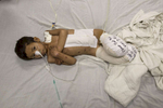 KABUL, AFGHANISTAN -APRIL 3, 2016: Kabir age 5, from Faryab lays in bed at the Emergency hospital in Kabul on April 3, 2016. He is a victim of a rocket attack, lost both of his legs along with his sister and brother who were also killed. Afghan civilians are at greater risk today than at any time since Taliban rule. According to UN statistics, in the first half of 2016 at least 1,600 people had died, and more than 3,500 people were injured, a 4 per cent increase in overall civilian causalities compared to the same period last year. The upsurge in violence has had devastating consequences for civilians, with suicide bombings and targeted attacks by the Taliban and other insurgents causing 70 percent of all civilian casualties.