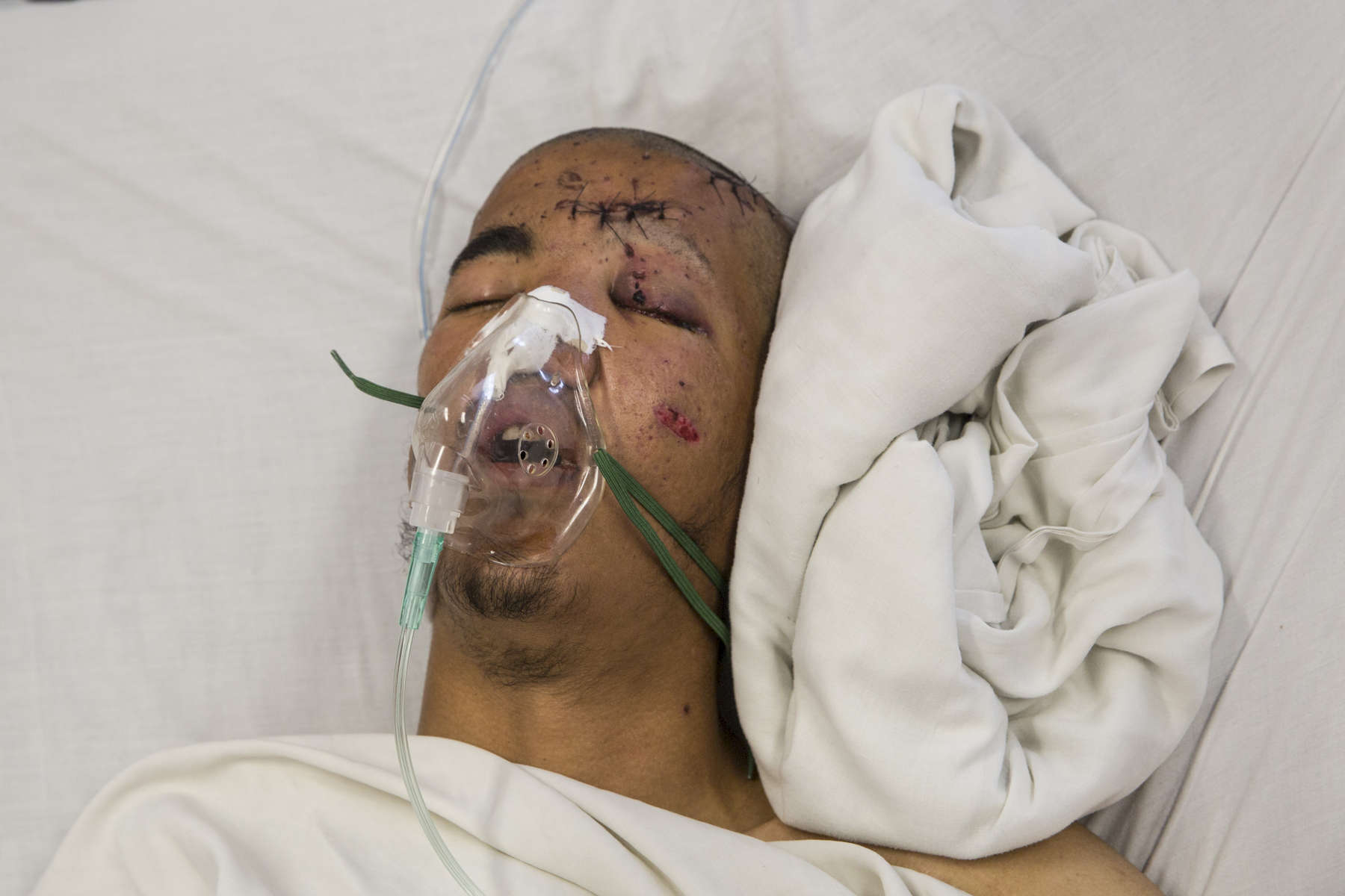 warwounded_afghanistan07