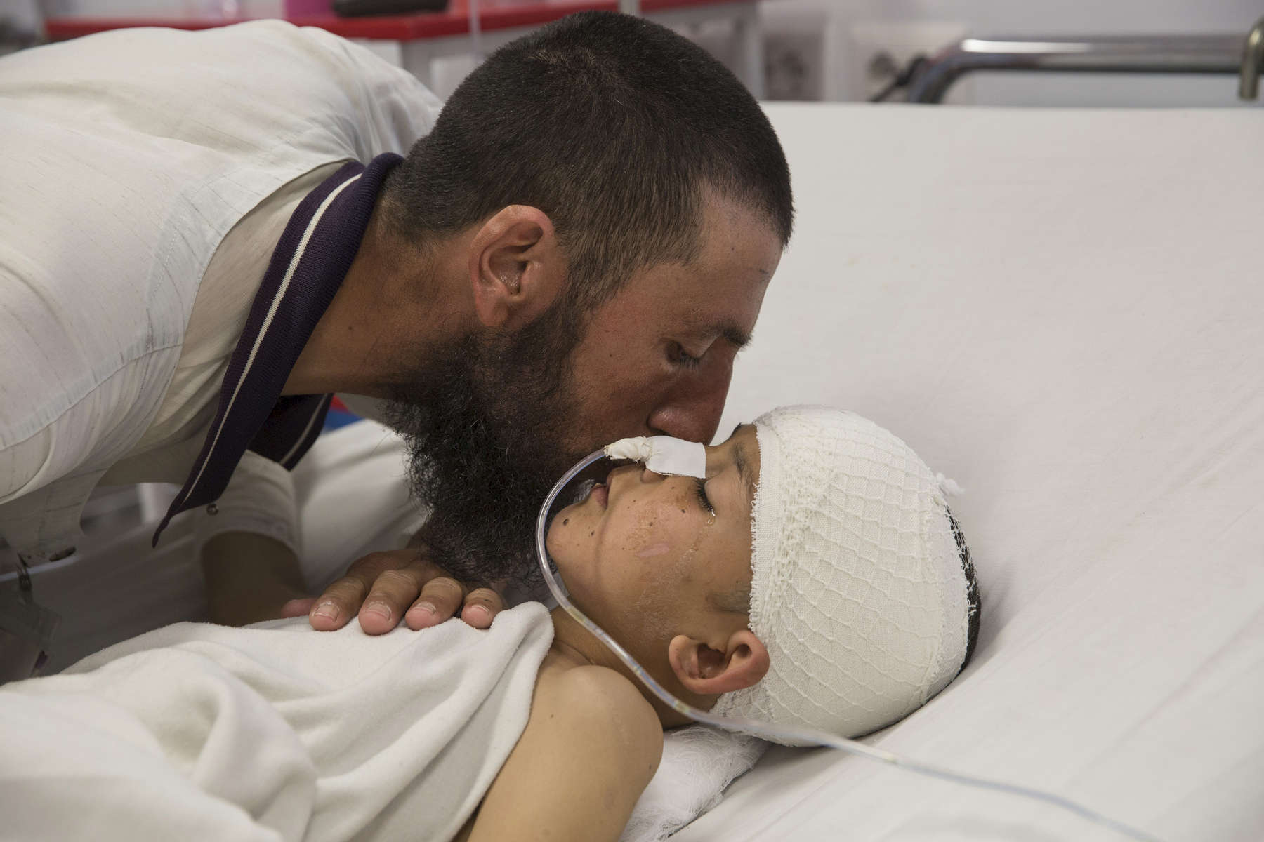 KABUL, AFGHANISTAN -MARCH 12, 2016:  Abdul Kabir kisses his son Noor Ahmad, 8, who is unconscious with a severe brain injury from an improvised explosive device (shell injury) from Mazar-E-Sharif Kabul on March 12, 2016. His father was also injured but recovered.As of April, 2016 the Emergency hospital stated that in the first quarter their patient numbers were up more than 30% from last year. They stated that patients are coming from much further distances now especially since the bombing of the MSF hospital in Kunduz last year which cared for many in the region.  Afghan civilians are at greater risk today than at any time since Taliban rule. According to UN statistics, in the first half of 2016 at least 1,600 people had died, and more than 3,500 people were injured, a 4 per cent increase in overall civilian causalities compared to the same period last year. The upsurge in violence has had devastating consequences for civilians, with suicide bombings and targeted attacks by the Taliban and other insurgents causing 70 percent of all civilian casualties.