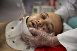 KABUL, AFGHANISTAN -MARCH 21, 2016: Azim, 25, a a quadriplegic who suffered bullet wounds to his face gets shifted to his side by medical staff at the Emergency hospital in Kabul on March 21, 2016. Every year the UN comes out with their report documenting the unfortunate carnage from America's longest and most costly war in history. Along with the price tag estimated in the hundreds of billions, the human toll from a 2015 UN Assistance Mission To Afghanistan (UNAMA) report stated the number of Afghan civilians killed and wounded surpassed 11,000.  which was the deadliest on record for civilians in Afghanistan since the US-led invasion more than 14 years ago.