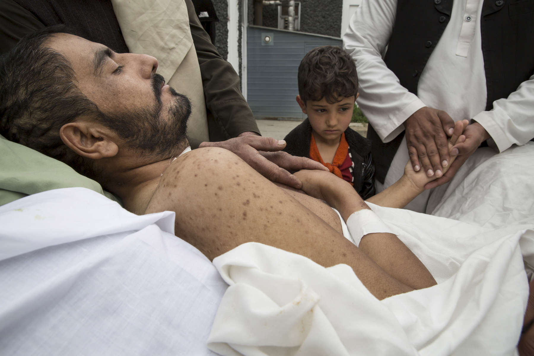 KABUL, AFGHANISTAN -MARCH 28, 2016: Khair Mohammed, 35, a paraplegic lays in bed outside his ward as friends and relatives visit him at the emergency hospital as his daughter Madina ,6, looks sadly at her father in Kabul on March 28, 2016. Khair just escaped death after taking 3 bullets to his abdomen and skull. Afghan civilians are at greater risk today than at any time since Taliban rule. According to UN statistics, in the first half of 2016 at least 1,600 people had died, and more than 3,500 people were injured, a 4 per cent increase in overall civilian causalities compared to the same period last year. The upsurge in violence has had devastating consequences for civilians, with suicide bombings and targeted attacks by the Taliban and other insurgents causing 70 percent of all civilian casualties.
