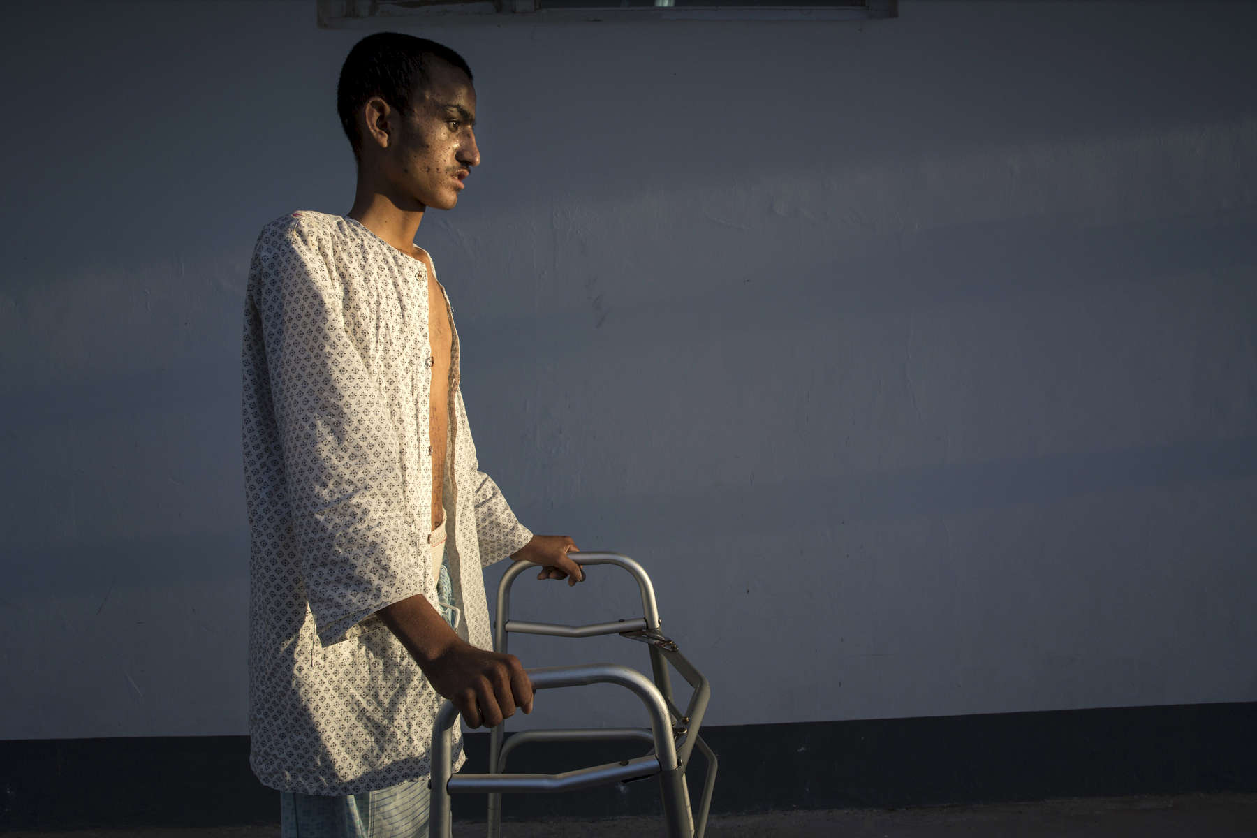 LASHKAR GAH, AFGHANISTAN -MARCH 26, 2015: Ahah Kahn, 19, barely is able to walk after a serious brain injury caused by an IED. Atah was a sheep herder from Helmand who was at the hospital for a month recovering his strength.  As of April, 2016 the Emergency hospital stated that in the first quarter their patient numbers were up more than 30% from last year. They stated that patients are coming from much further distances now especially since the bombing of the MSF hospital in Kunduz last year which cared for many in the region.  Afghan civilians are at greater risk today than at any time since Taliban rule. According to UN statistics, in the first half of 2016 at least 1,600 people had died, and more than 3,500 people were injured, a 4 per cent increase in overall civilian causalities compared to the same period last year. The upsurge in violence has had devastating consequences for civilians, with suicide bombings and targeted attacks by the Taliban and other insurgents causing 70 percent of all civilian casualties.