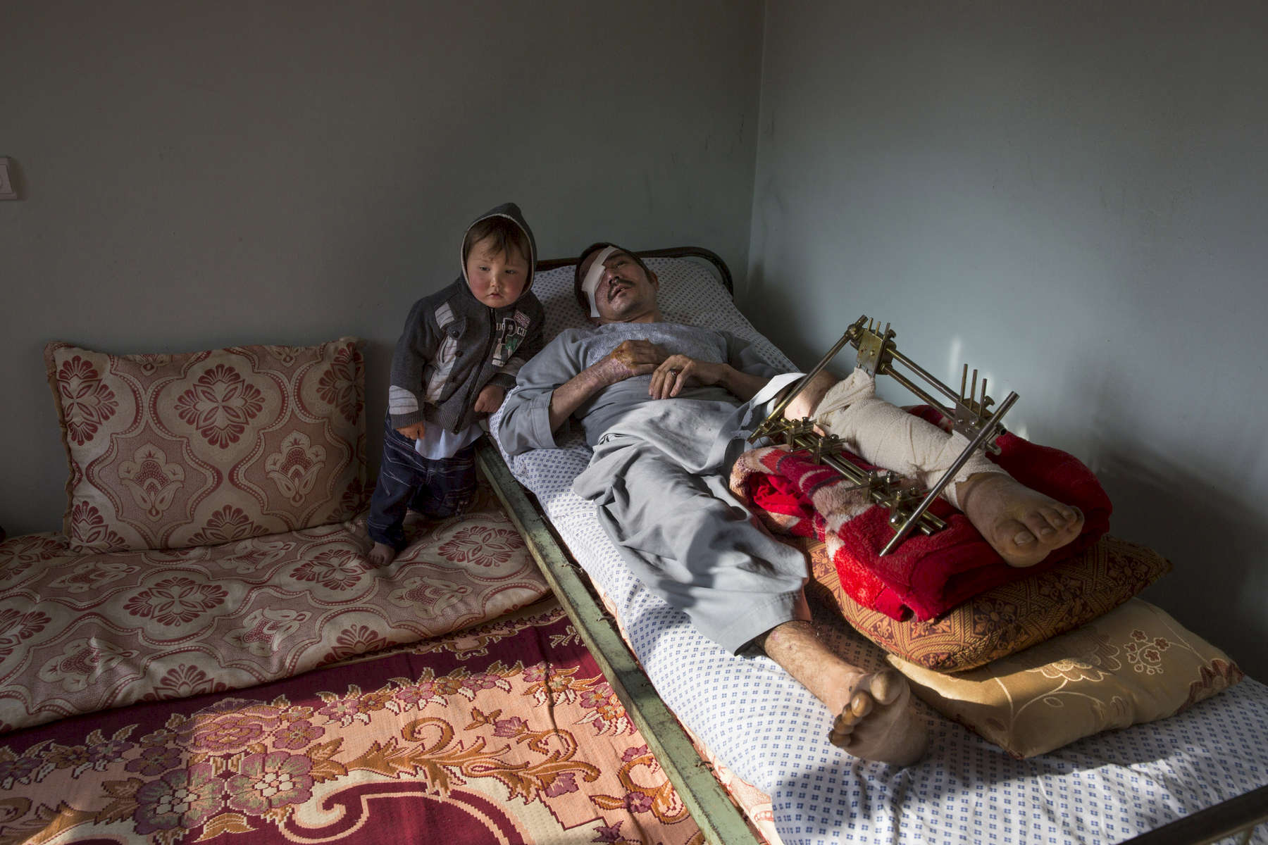 KABUL, AFGHANISTAN -APRIL 9, 2016:  Abdul Hussain Ayoobi, is seen at home with his son Ali Akbar, 3, who is trying to understand why his father hurts so much all the time. Abdul, a carpenter was one of the seriously wounded victims for Tolo TV. The employees had finished a day's work at Tolo TV, one of Afghanistan's largest entertainment channels, when they boarded a company bus in Kabul that was rammed by a car driven by a Taliban suicide bomber. Seven people were killed and at least 25 wounded in the attack.Afghan civilians are at greater risk today than at any time since Taliban rule. According to UN statistics, in the first half of 2016 at least 1,600 people had died, and more than 3,500 people were injured, a 4 per cent increase in overall civilian causalities compared to the same period last year. The upsurge in violence has had devastating consequences for civilians, with suicide bombings and targeted attacks by the Taliban and other insurgents causing 70 percent of all civilian casualties.