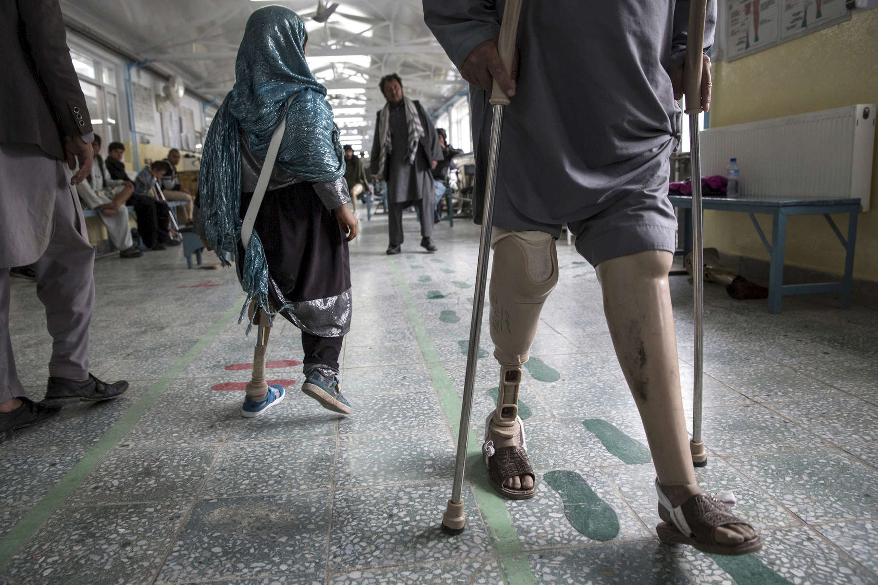KABUL, AFGHANISTAN -APRIL 2, 2016: At the ICRC Orthopedic center handicapped patients practice walking on their prosthetics. Afghan civilians are at greater risk today than at any time since Taliban rule. According to UN statistics, in the first half of 2016 at least 1,600 people had died, and more than 3,500 people were injured, a 4 per cent increase in overall civilian causalities compared to the same period last year. The upsurge in violence has had devastating consequences for civilians, with suicide bombings and targeted attacks by the Taliban and other insurgents causing 70 percent of all civilian casualties.