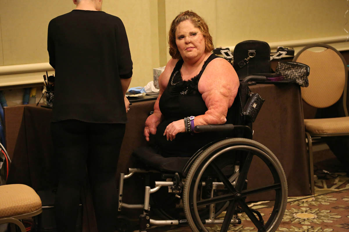 Ruth Smith, Ms. Wheelchair Indiana 2014, while having her hair and makeup done before the gala dinner. Smith has a degree in childhood health from Purdue University, and is studying for a master's in clinical mental health counseling.