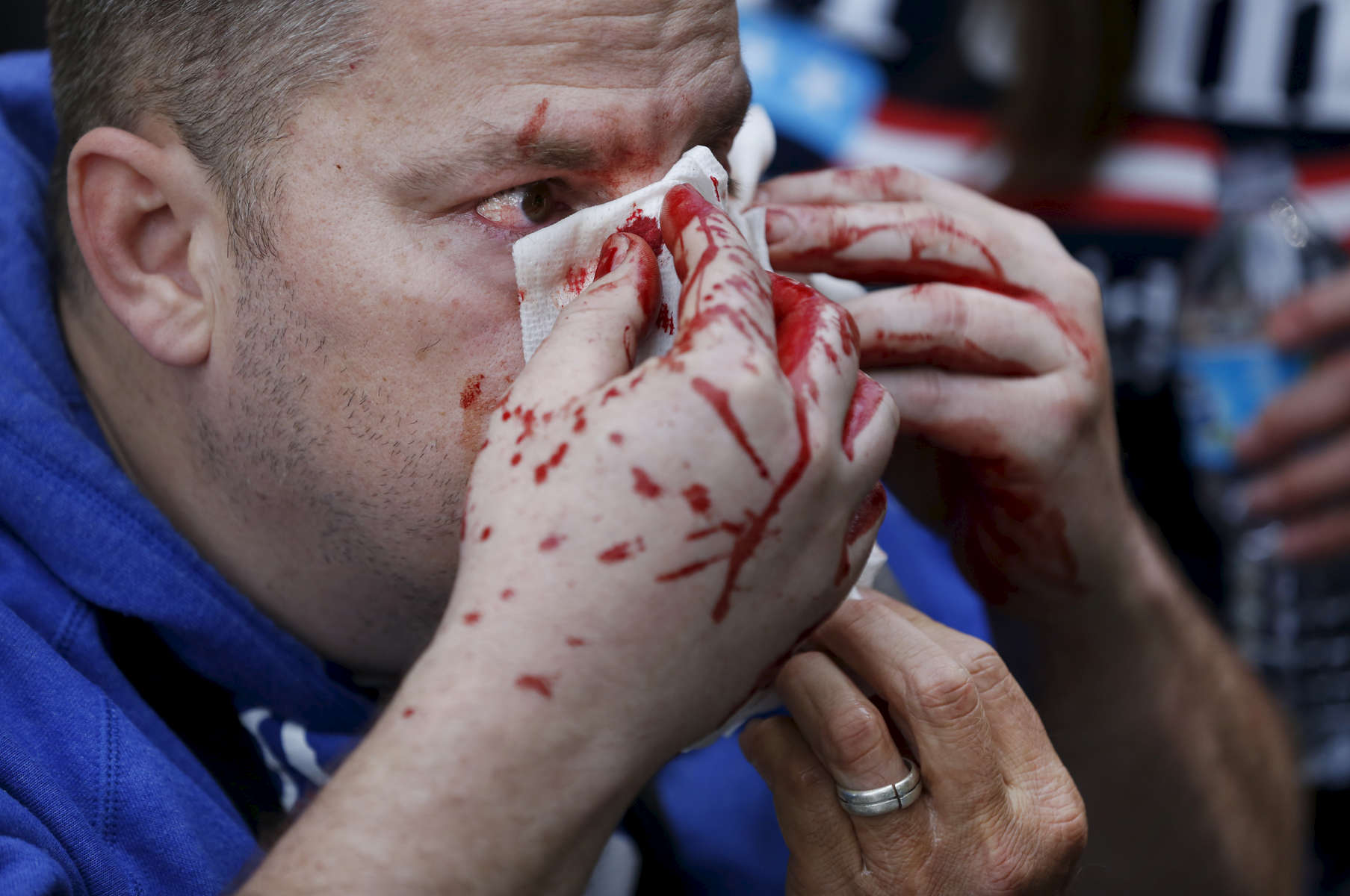 John Beavers, a pro-Trump supporter gets medical treatment after a violent skirmish broke out between anti-fascist protesters and pro-Trump supporters during a rally called {quote}Patriot's Day Free Speech Rally{quote} in Martin Luther King Jr. Civic Center Park April 15, 2017 in Berkeley, Calif.