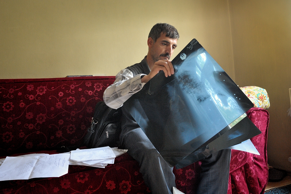 Bekir looks at one of the many X-rays that have been made of his severely damaged lungs. Now that he has end-stage silicosis, a lung transplant in the next years is the only way to prolong his life.